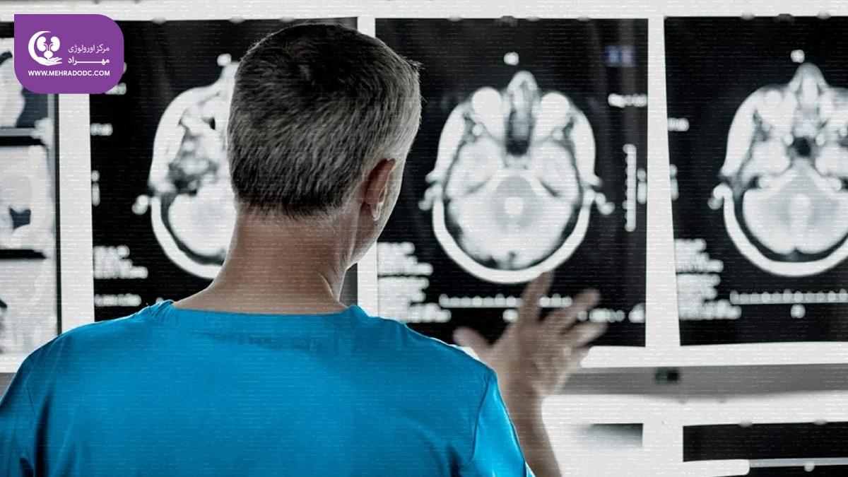 مثانه نوروژنیک   کلینیک تخصصی اورولوژی مهراد